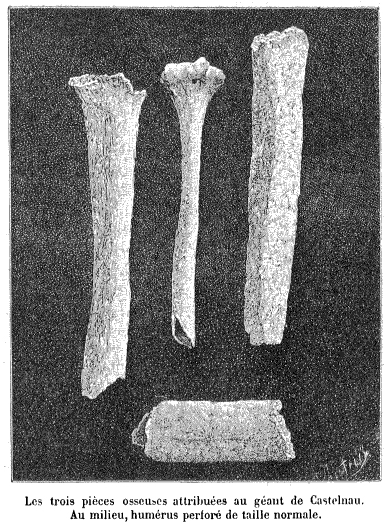 The Giants did exist: colossal skeletons all over the world-Bone_fragments_attributed_to_the-Castelnau_giant