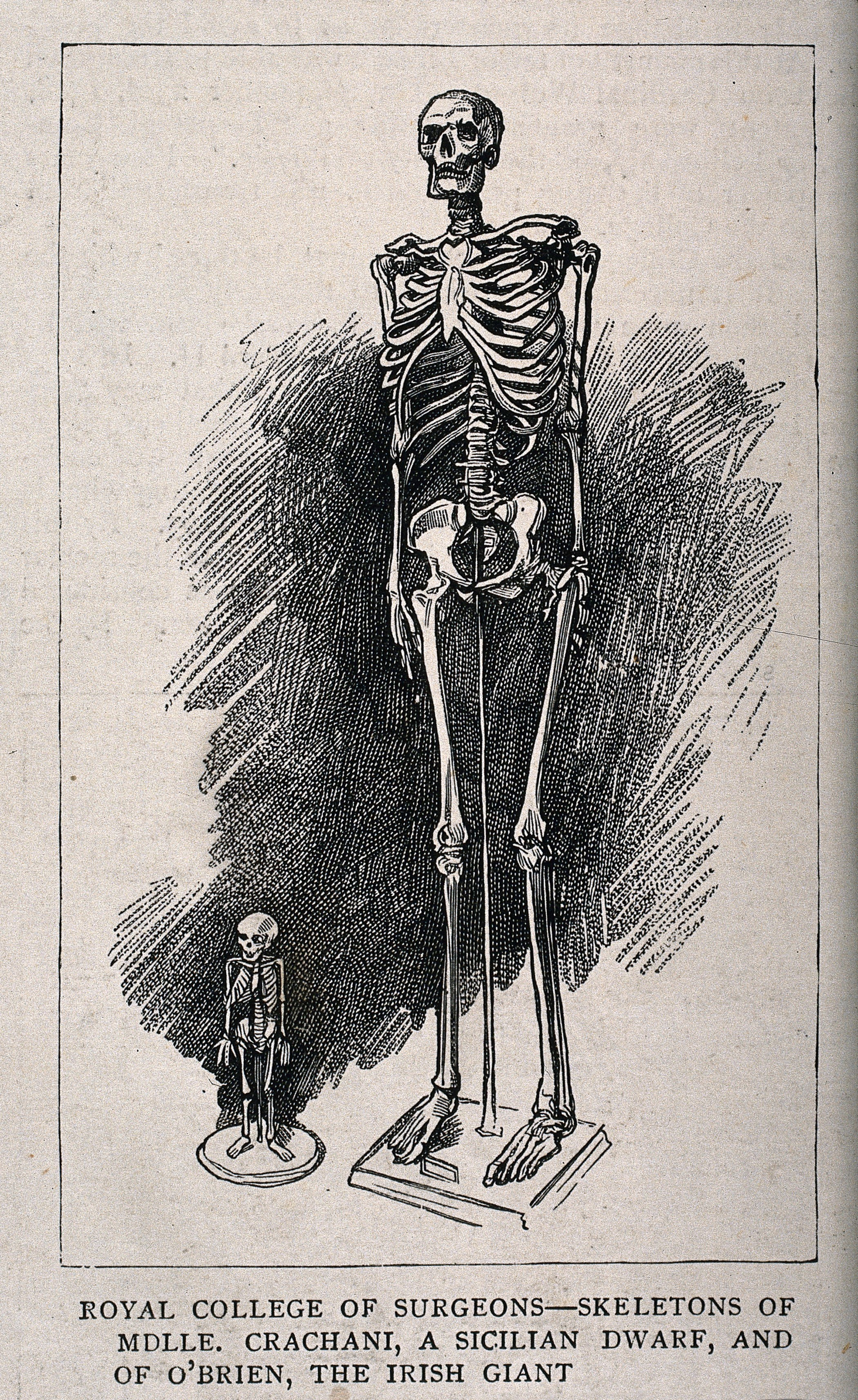 Does history hide the past existence of giants?-Skeletons_of_a_male_giant_and_a_female_dwarf